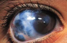 Penyembuhan Glaukoma
