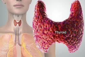Pengobatan Kelenjar Tiroid Bengkak